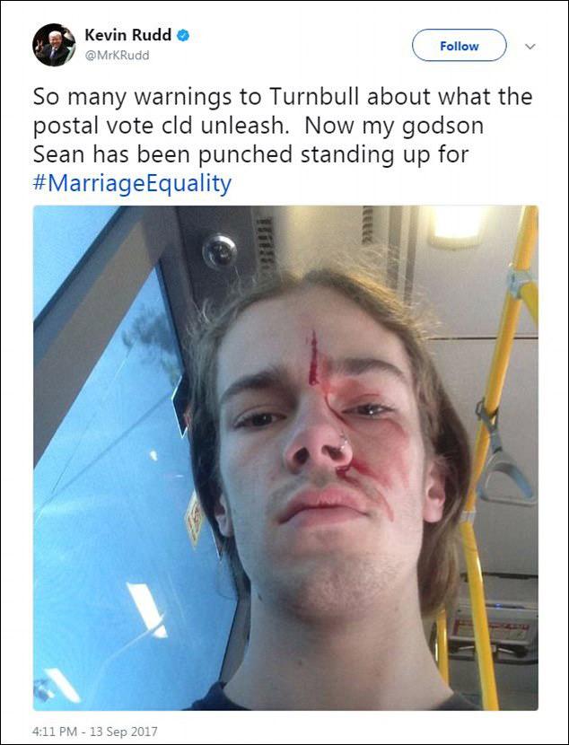 """澳大利亚前总理参加反同性婚姻活动 遭""""铁头功""""顶伤"""