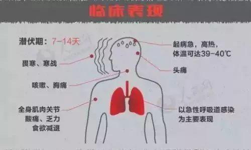 """月四川传染病死亡478人,艾滋病死亡数最高为466人,肺结核发病5684例"""""""